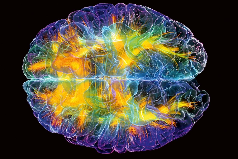 Hoe stimuleer je jouw hersenen
